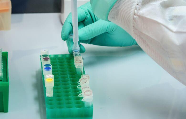 prof-dr-alper-celik-metabolikcerrahi-tip2diyabet-sekerameliyati-1